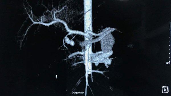 Hình chụp X-Quang phổi của bệnh nhi